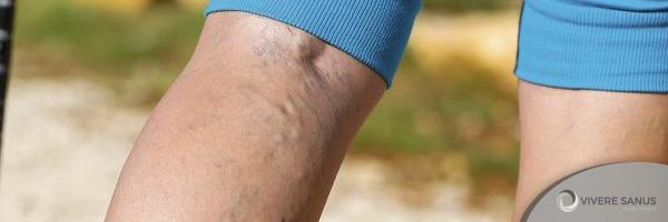 varizes-dor-pernas