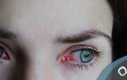 conjuntivite, olho, vermelhidão